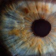 Iriscopie   oogdiagnose